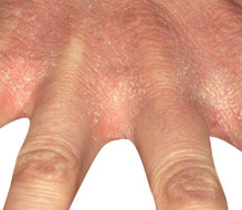 Example of dermatitis beginning in the web spaces between the fingers