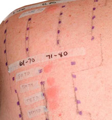 Positive patch test reactions